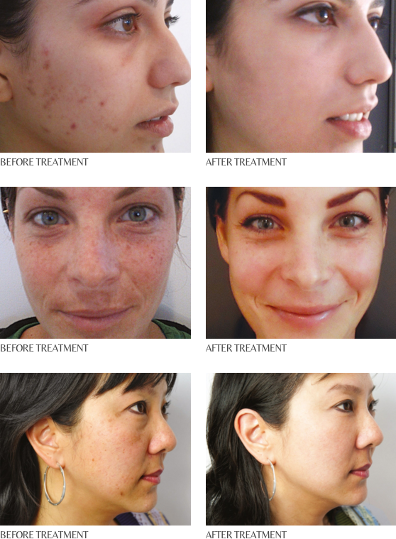 tpp-before-after