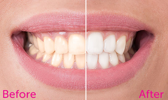 Perfect smile before and after bleaching.