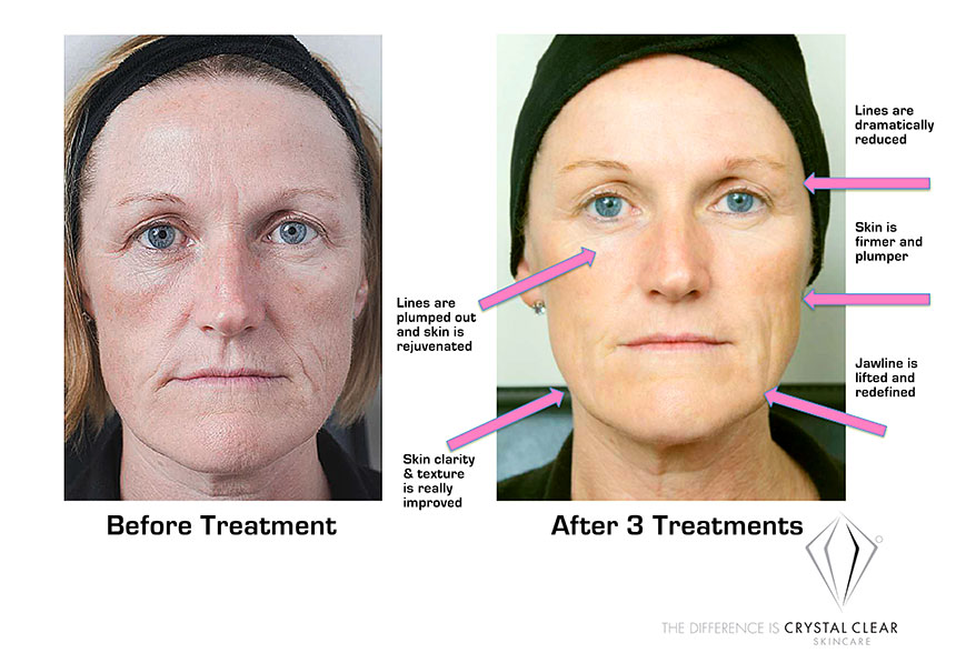 Foto facial before after